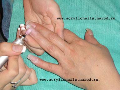 Ремпель стрижка ногтей по ремпелю
